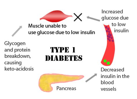 Systematic Literature Review of Basal Bolus Insulin